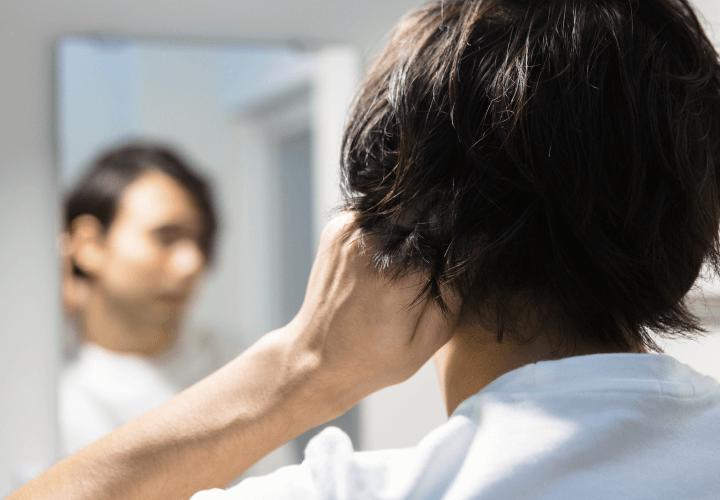 男性型脱毛症治療